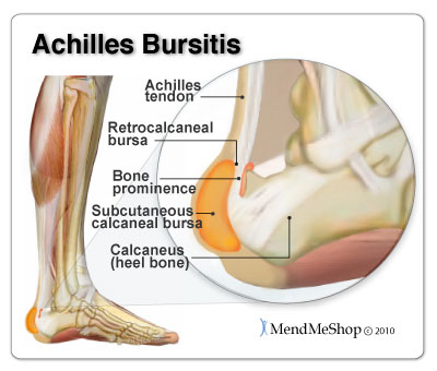 Achilles Bursitis pain and inflammation can be treated naturally conservative home treatments