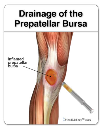 Recovery from draining your knee bursitis.