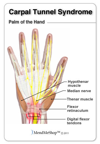 A doctor visit is always recommended, to tell you what type of wrist pain you have, bursitis or tendonitis