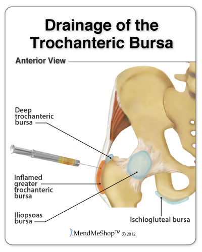 Calcific Trochanteric Bursitis