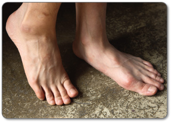 Conservative treatment methods are the best way to treat foot bursitis of any kind.