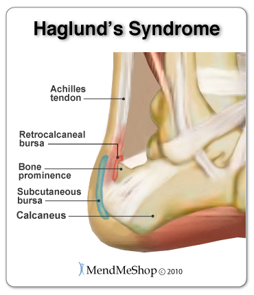 Haglund's Syndrome causes excess rubbing at the back of the heel, often leading to Achilles Bursitis and Achilles Tendonitis.