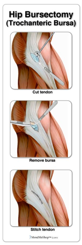 Removal of the trochanteric bursa, hip bursectomy.