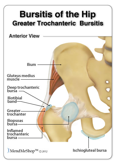 The greater trochanter bursa experienced bursitis more commonly than any other hip bursa.