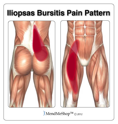 Iliopsoas bursitis pain patterns