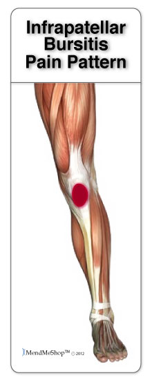 Pain around and below the knee cap is commonly caused by prepatellar or infrapatellar bursitis.