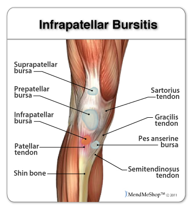 Infrapatellar bursitis causes pain in the knee.