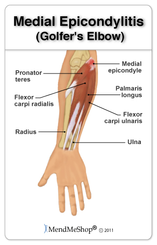 Elbow pain can be causes by bursa pain, or golfers elbow.