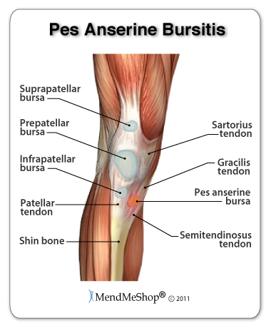 Repetitive bending can cause pes anserine bursitis and pain in the knee.