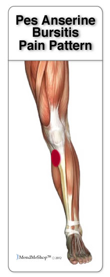 Pain to the lateral side of the knee cap is commonly caused by pes anserine bursitis.