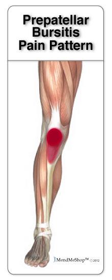 Pain below the knee cap is commonly caused by prepatellar bursitis.
