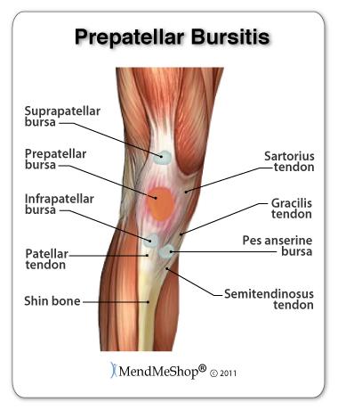 Infrapatellar bursitis causes pain in the knee.