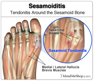 Injury to the tissue holding small sesamoid bones can case foot pain.