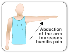 Shoulder bursitis can cause pain during activities requiring abduction of the rotator cuff.