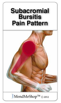 Subacromial Bursitis pain pattern.