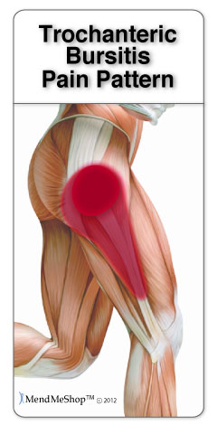 Hip bursitis pain pattern